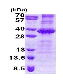 SDS-PAGE - Recombinant Human NEURL2 protein (denatured) (ab171589)