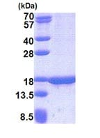 SDS-PAGE - Recombinant Human TUSC2/FUS1 protein (denatured) (ab171606)