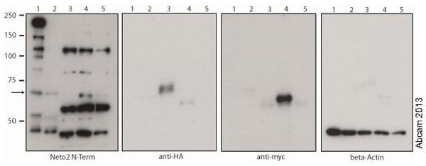 Western blot - Anti-NETO2 antibody - N-terminal (ab171651)