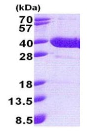 SDS-PAGE - Recombinant Human NFKBID protein (ab171676)
