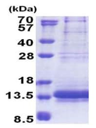 SDS-PAGE - Recombinant Human NDUFV3 protein (ab171680)