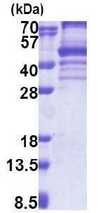 SDS-PAGE - Recombinant Human EBP2 protein (denatured) (ab171692)