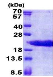 SDS-PAGE - Recombinant Human PTMA protein (ab171705)