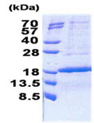 SDS-PAGE - Recombinant Human KIAA0101 protein (ab171707)