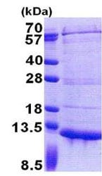 SDS-PAGE - Recombinant Human PET117 protein (ab171710)