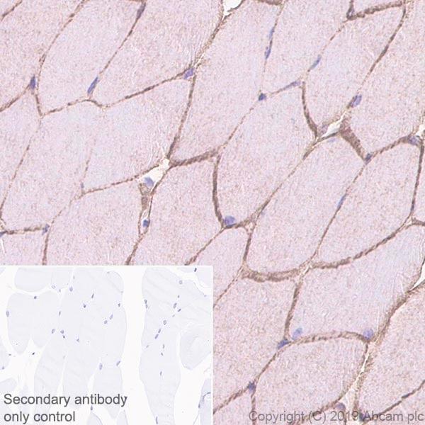 Immunohistochemistry (Formalin/PFA-fixed paraffin-embedded sections) - Anti-Caveolin-3 antibody [EPR11083] (ab171752)