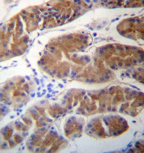 Immunohistochemistry (Formalin/PFA-fixed paraffin-embedded sections) - Anti-MORN1 antibody - N-terminal (ab171848)