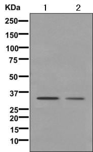 Western blot - Anti-LDB3 antibody [EPR10126] (ab171936)