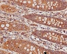 Immunohistochemistry (Formalin/PFA-fixed paraffin-embedded sections) - Anti-SRGAP1 antibody [EPR8760(2)] (ab171938)