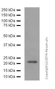 Western blot - Anti-FGF21 antibody [EPR8314(2)] (ab171941)