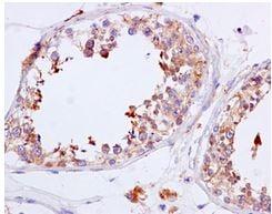 Immunohistochemistry (Formalin/PFA-fixed paraffin-embedded sections) - Anti-NADSYN1 antibody [EPR10611] (ab171942)