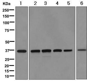 Western blot - Anti-QPRT antibody [EPR11941(B)] (ab171944)