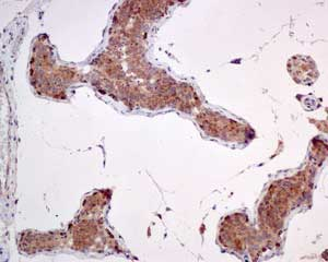 Immunohistochemistry (Formalin/PFA-fixed paraffin-embedded sections) - Anti-mtTFA antibody [EPR12286] (ab171951)