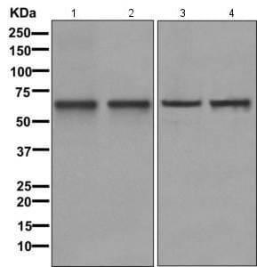 Western blot - Anti-Cytokeratin 9 antibody [EPR10932-62] (ab171966)
