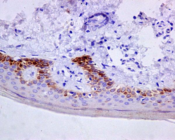 Immunohistochemistry (Formalin/PFA-fixed paraffin-embedded sections) - Anti-Cytokeratin 9 antibody [EPR10932-62] (ab171966)