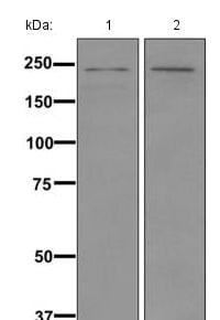 Western blot - Anti-CACNA1F antibody [EPR11822] (ab171968)