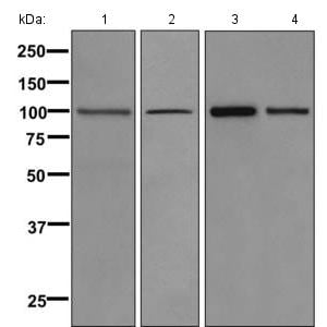 Western blot - Anti-Calmegin antibody [EPR11832] (ab171971)