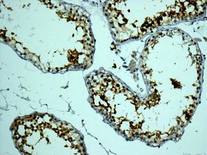 Immunohistochemistry (Formalin/PFA-fixed paraffin-embedded sections) - Anti-Calmegin antibody [EPR11832] (ab171971)