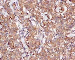 Immunohistochemistry (Formalin/PFA-fixed paraffin-embedded sections) - Anti-CacyBP antibody [EPR12374] (ab171972)