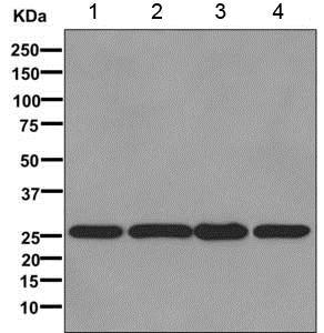Western blot - Anti-CacyBP antibody [EPR12374] (ab171972)