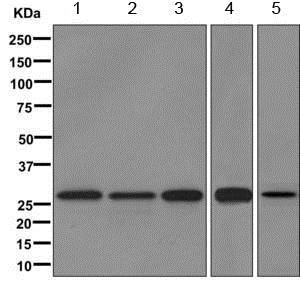 Western blot - Anti-TIMMDC1/C3orf1 antibody [EPR11807] (ab171978)