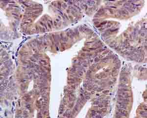 Immunohistochemistry (Formalin/PFA-fixed paraffin-embedded sections) - Anti-NUDCD2 antibody [EPR11558] (ab171979)