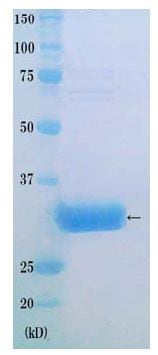 SDS-PAGE - Recombinant Human PCNA protein (ab172197)