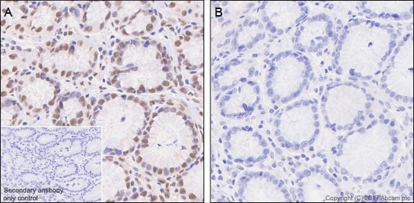 Immunohistochemistry (Formalin/PFA-fixed paraffin-embedded sections) - Anti-Smad3 (phospho S423 + S425) antibody [EP823Y] - BSA and Azide free (ab172202)