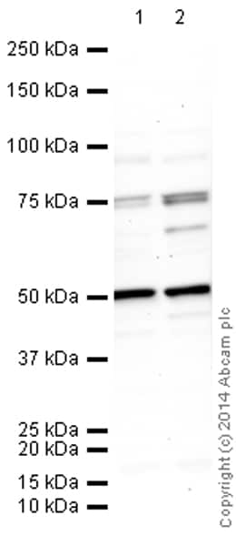 Western blot - Anti-FOXP2 antibody [73A/8] (ab172320)