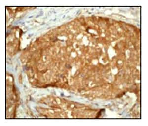 Immunohistochemistry (Formalin/PFA-fixed paraffin-embedded sections) - Anti-YAP1 antibody [EP1674Y] - BSA and Azide free (ab172373)