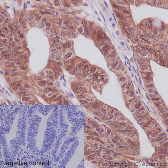 Immunohistochemistry (Formalin/PFA-fixed paraffin-embedded sections) - Anti-YAP1 (phospho S127) antibody [EP1675Y] - BSA and Azide free (ab172374)