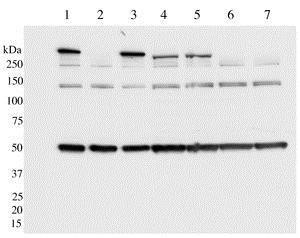 Western blot - Anti-LRRK2 (phospho S910) antibody [UDD1 15(3)] - BSA and Azide free (ab172381)