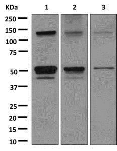 Western blot - Anti-Aspartate beta hydroxylase antibody [EPR10351] (ab172475)