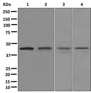 Western blot - Anti-RRM2 antibody [EPR11820] (ab172476)