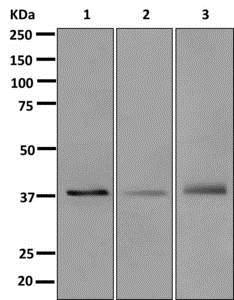 Western blot - Anti-MURF1 + MURF3 + MURF2 antibody [EPR6431(2)] (ab172479)