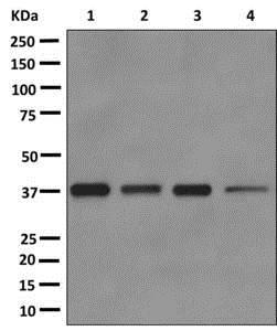 Western blot - Anti-C3orf38 antibody [EPR12512] (ab172482)