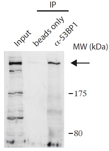 Immunoprecipitation - Anti-53BP1 antibody (ab172580)
