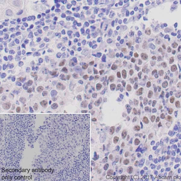 Immunohistochemistry (Formalin/PFA-fixed paraffin-embedded sections) - Anti-Bcl6 antibody [EPR11410-43] (ab172610)