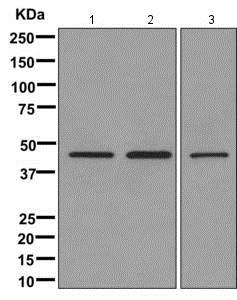 Western blot - Anti-DKK4 antibody [EPR7867(2)] (ab172613)