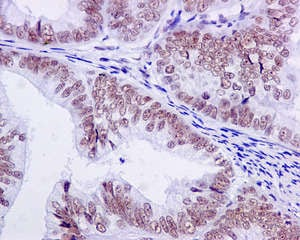 Immunohistochemistry (Formalin/PFA-fixed paraffin-embedded sections) - Anti-U2AF35/U2AF1 antibody [EPR12649(B)] (ab172614)