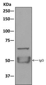 Immunoprecipitation - Anti-BEGAIN antibody [EPR11155] (ab172619)