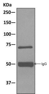 Western blot - Anti-KIFC1 antibody [11445] (ab172620)