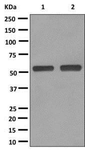 Western blot - Anti-UGT1A8 antibody [EPR11949] (ab172624)