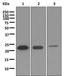 Western blot - Anti-SP17 antibody [EP6496] (ab172626)