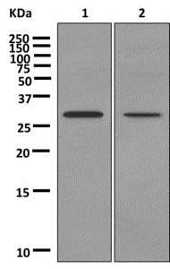 Western blot - Anti-Ninjurin2 antibody [EPR12038] (ab172627)