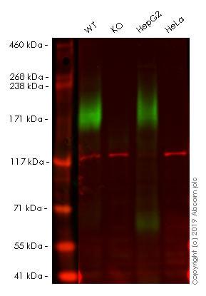 Western blot - Anti-MRP2 antibody [EPR10998] (ab172630)