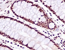 Immunohistochemistry (Formalin/PFA-fixed paraffin-embedded sections) - Anti-SF3B1 antibody [EPR11986] (ab172634)