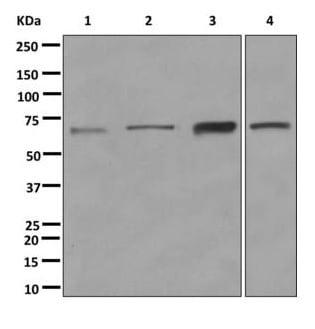 Western blot - Anti-HEPACAM antibody [EPR11217] (ab172635)