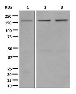 Western blot - Anti-SMARCC1/BAF155 antibody [EPR12389] (ab172636)