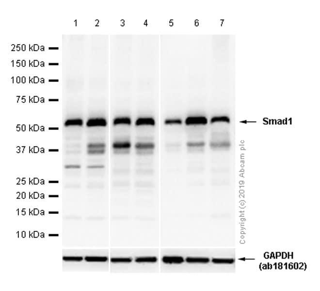 Western blot - Anti-Smad1 antibody [EP565Y] - BSA and Azide free (ab172642)